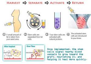celule stem din tesut subcutan