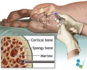 infiltratii celule stem in genunchi