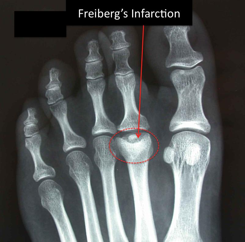 Boala Freiberg1
