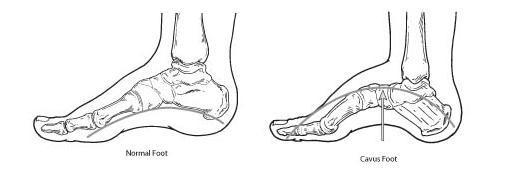 Piciorul scobit