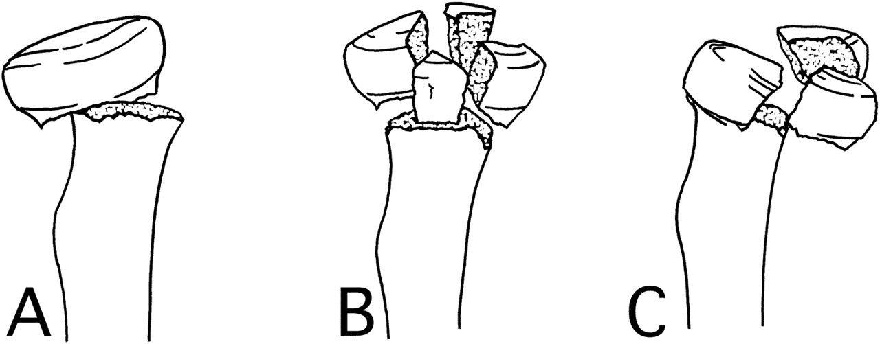 clasificarea mason