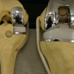 Artroplastia unicompartimentala de genunchi.
