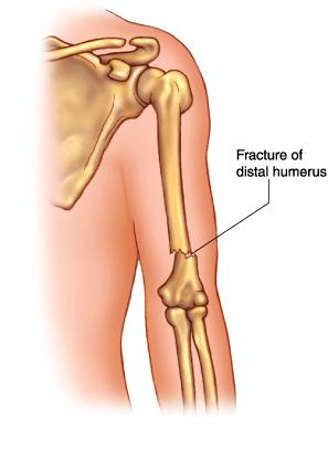 fractura de humerus distal