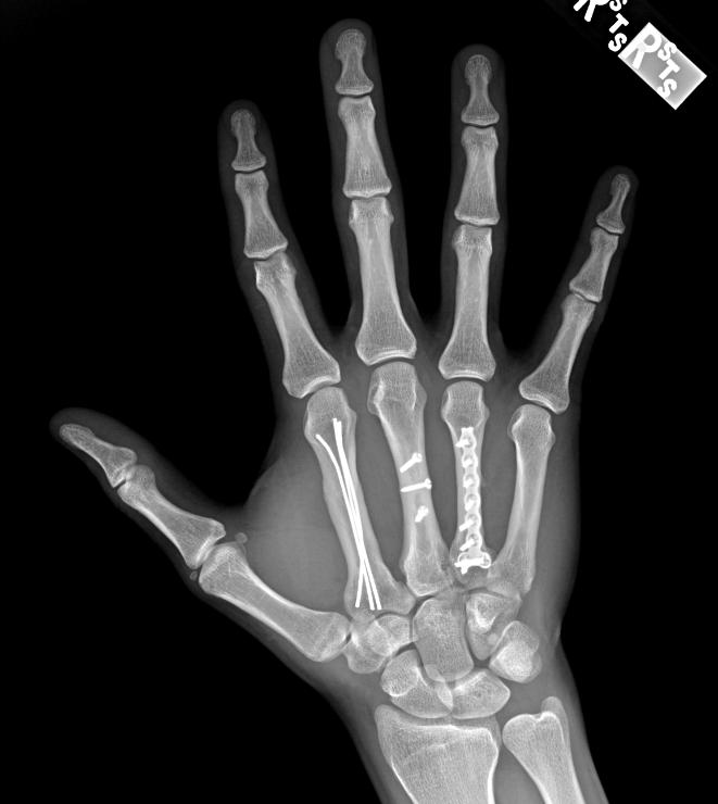 fractura metacarp operata