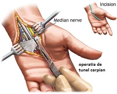 operatia tunel carpian