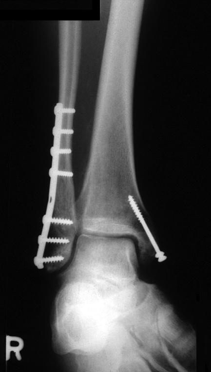 operatie fractura bimaleolara