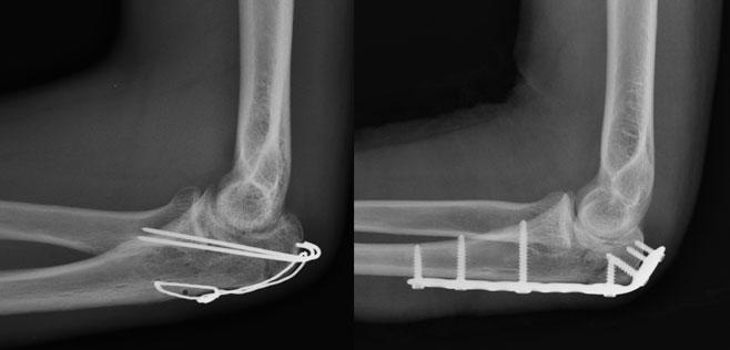 operatie fractura olecran