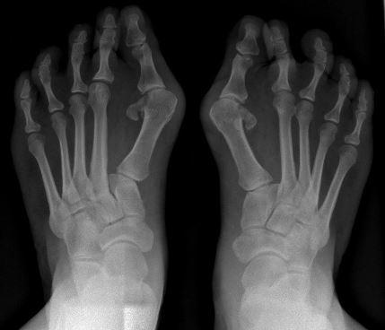 radiografie monturi