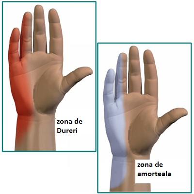 sindrom de nerv cubital