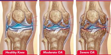 stadiile de artroza ale genunchiului
