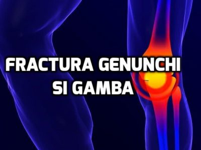 fractura genunchi