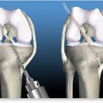 Un genunchi cu ligamentul încrucişat anterior rupt va suferi de artroză în 5 ani