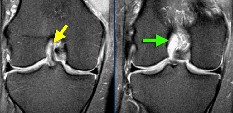 ruptura ligament incrucisat anterior pe rmn