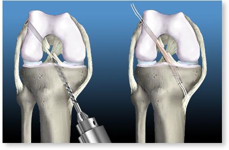 """Pericolele care îi pândesc pe cei care fac sport Dr. Tarek Nazer: """"Un genunchi cu ligamentul încrucişat anterior rupt va suferi de artroză în 5 ani!"""" O problemă de sănătate des întâlnită la cei care fac sporturi precum schiul, baschetul, fotbalul sau rugby-ul este leziunea de ligament încrucişat. Deşi suntem tentaţi să credem că doar sportivii de permormanţă pot suferi astfel accidente, în fapt toţi cei care practică activităţi sportive fără încălzire premergătoare antrenamentului propriu-zis sau care au o greutate corporală peste medie sunt predispuşi să sufere din această cauză. Săptămâna aceasta am stat de vorbă cu Dr. Tarek Nazer, medic specialist ortopedie şi traumatologie, specialist în chirurgia artroscopică minim invazivă, de la Clinica Masaya din Bucureşti, care ne-a explicat cum se tratează leziunea de ligament încrucişat anterior şi care sunt riscurile la care se expun cei care nu se prezintă la medicul specialist pentru a primi ajutor de la primele simptome. Cum vă daşi seama că aţi suferit o ruptură de ligament Ruptură de ligament încrucişat anterior este cel mai adesea consecinţa unei torsiuni violente a genunchiului, care survine adesea în timpul unui accident sportiv, unei mişcări de rotaţie rapidă sau unei opriri bruşte. Anumite sporturi ca schiul, fotbalul, rugby-ul sau baschetul sunt la originea numeroaselor rupturi de ligamente. Alţi factori care ne pot trimite de urgenţă la medicul ortoped sunt greutatea corporală crescută, hiperlaxitatea articulară (n.r. mobilitatea articulaţiilor), activităţile sportive fără încălzire adecvată premergătoare antrenamentelor şi leziunile de menisc luxate intraarticular. Dr. Tarek Nazer, medic specialist ortopedie şi traumatologie, ne-a spus care sunt semnele la care trebuie să fim atenţi pentru a ne da seama că am suferit o astfel de ruptură. """"Se resimte o durere violentă la nivelul genunchiului şi un cracment (zgomot) datorat ruperii ligamentului. La scurt timp după acest semnal, apare o senzaţie de instabilita"""
