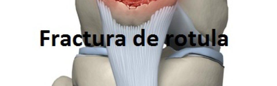 fractura rotula