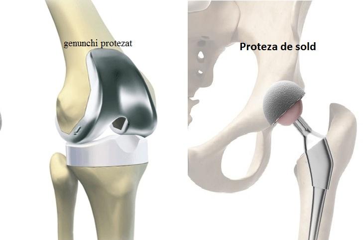 proteza sold - genunchi