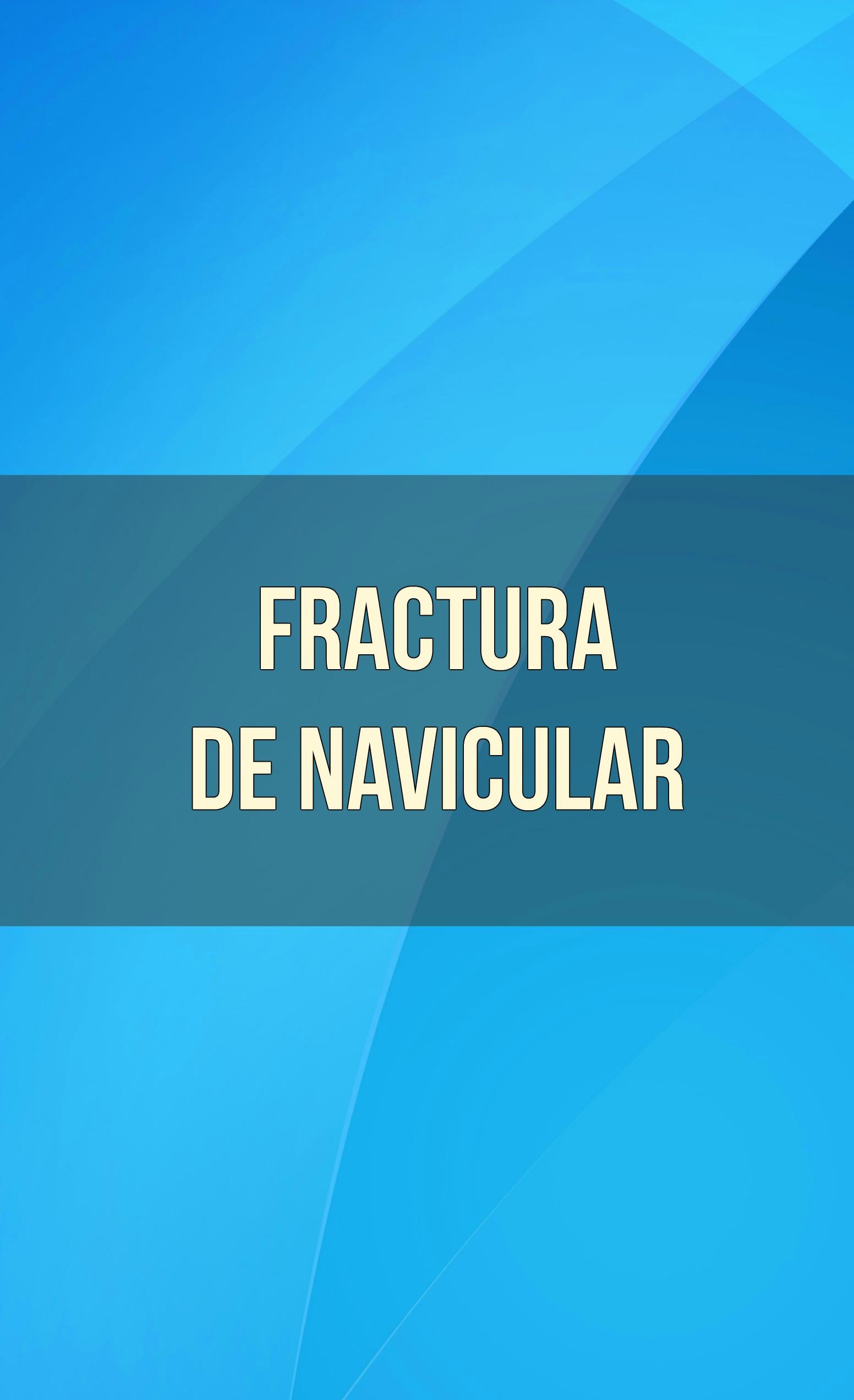 fractura de navicular