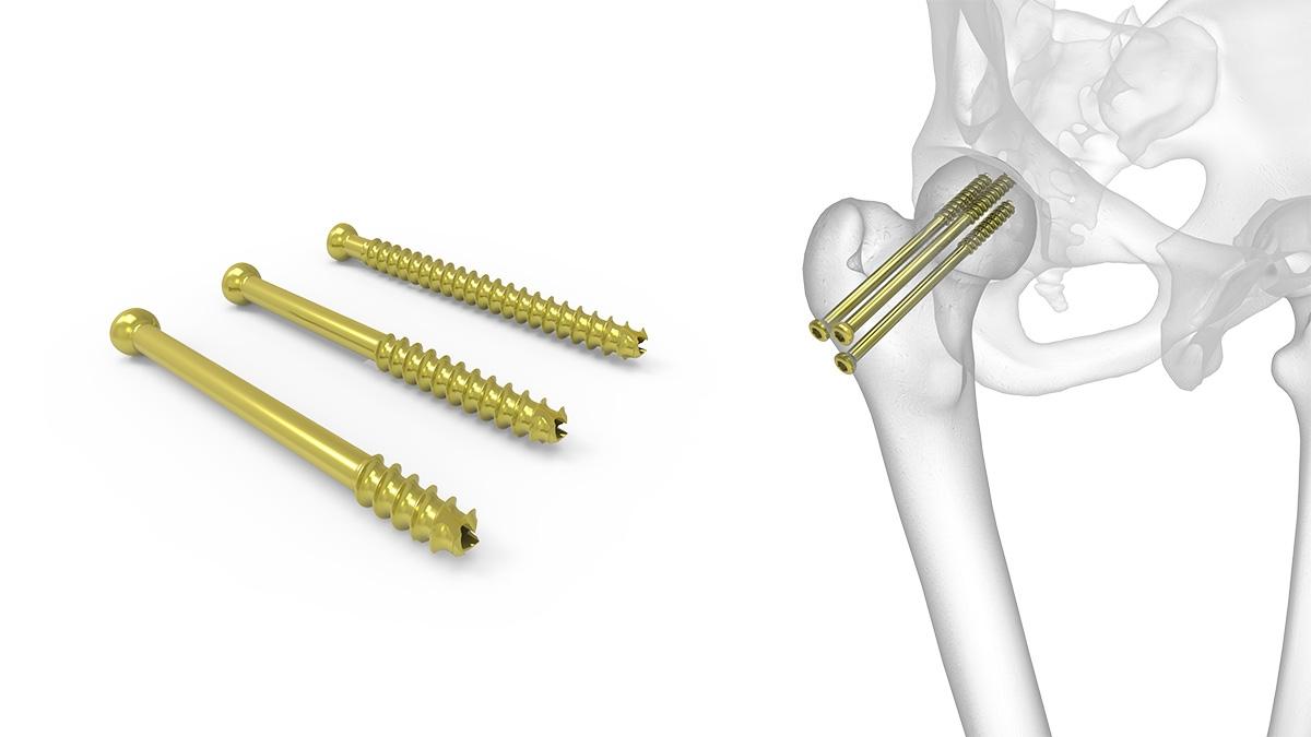 fractura intertrohanteriana