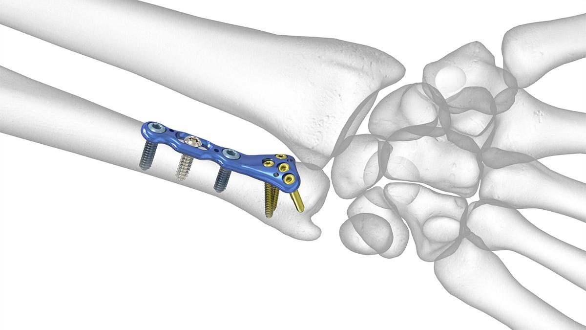 fractura radius si ulna