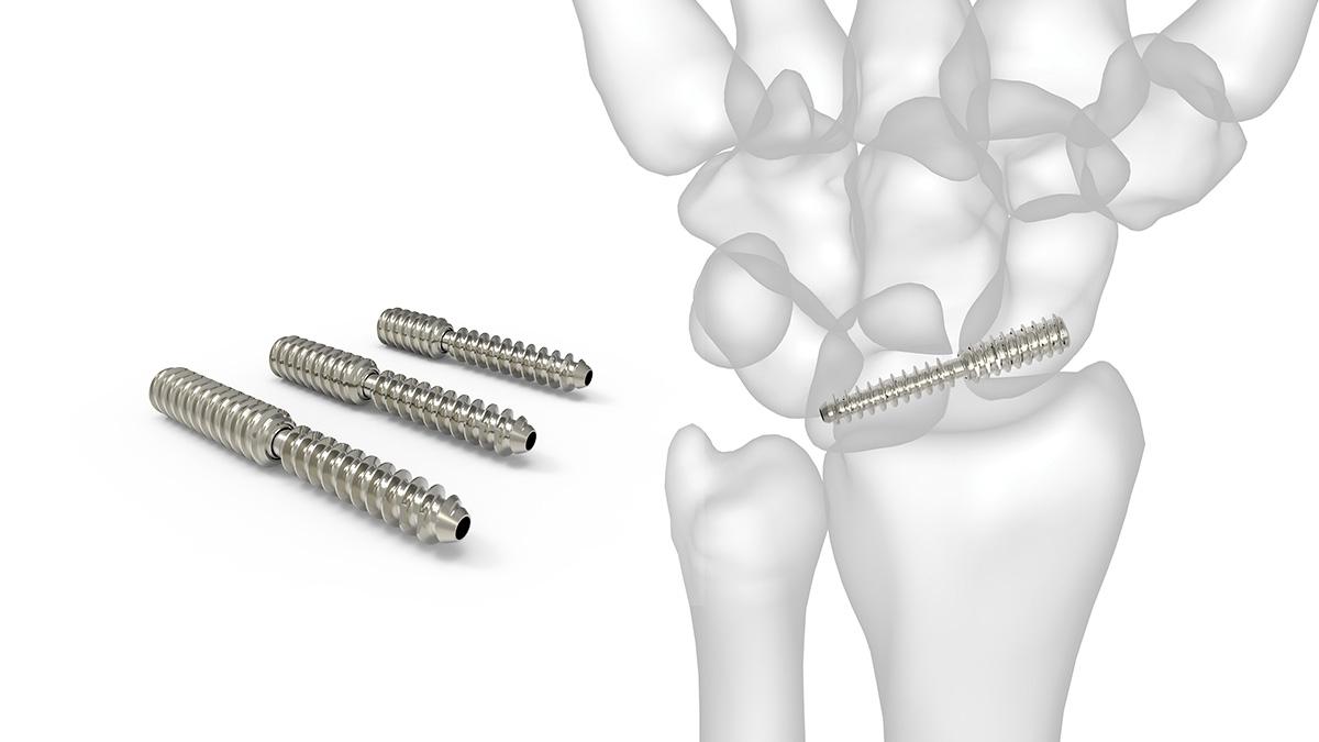 fractura scafoid
