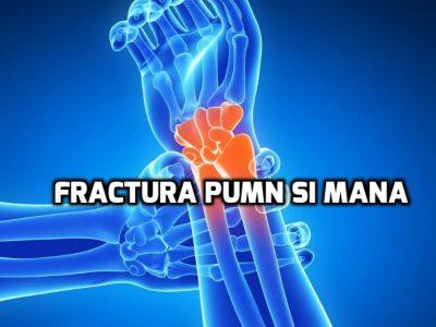 fractura pumn