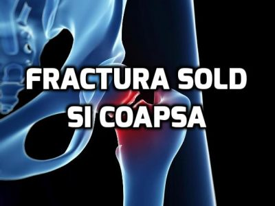 fractura sold
